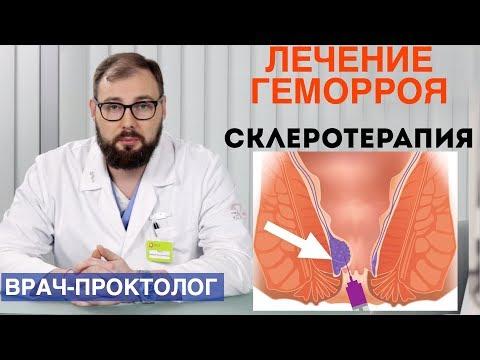 История Болезни Наружный Тромбированный Геморрой