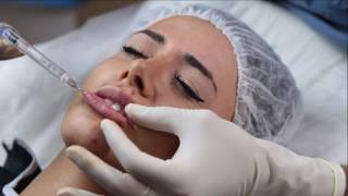 botoks and hyaluran lip augmentation _ hyaluran dudak dolgusu