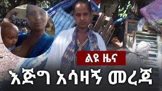 Heart touched story of A Mother who was living in Benshangul Gumuze