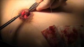 乳輪縮小 修正手術2 Areola Reduction, correcting operation, case2, 陥没乳頭を伴う
