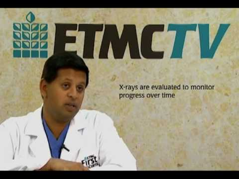 ETMC TV: Dr. Vivek Patel - Surgical Treatment of Lung Cancer