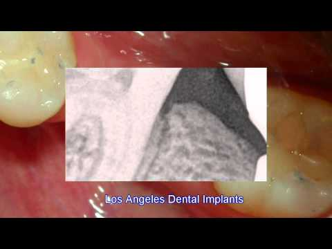 Los Angeles Dental Implants 3-5  -s