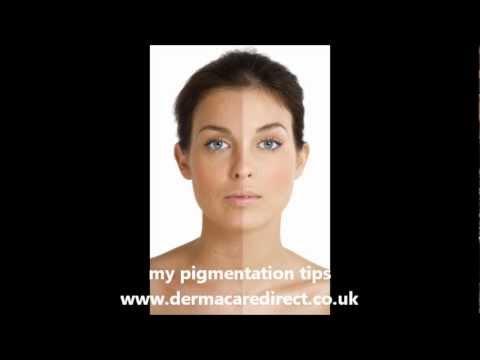 Hyperpigmentation treatment tips