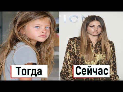 Самая Красивая Девочка В Мире: Как сейчас выглядит Тилан Блондо