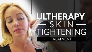 Ultherapy Skin Tightening Beverly Hills, CA  / Neck, Jaw, Eyebrow and lid Lifting With Ultrasound
