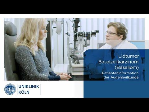 Uniklinik Köln | Augenklinik: Basaliom -  Basalzellkarzinom (Patienteninformation)
