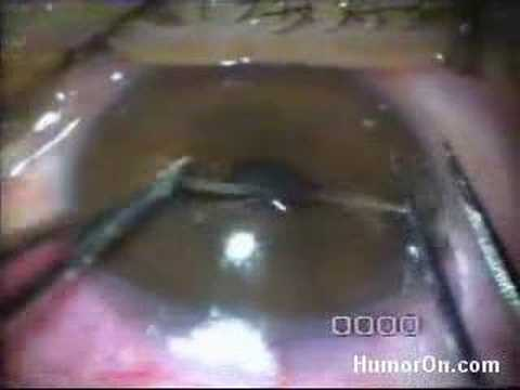 WORM LIKE CREATURE REMOVED FROM EYE