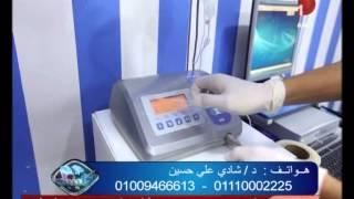 شاهد.. عملية زرع أسنان دون ألم مع الدكتور شادي علي حسين