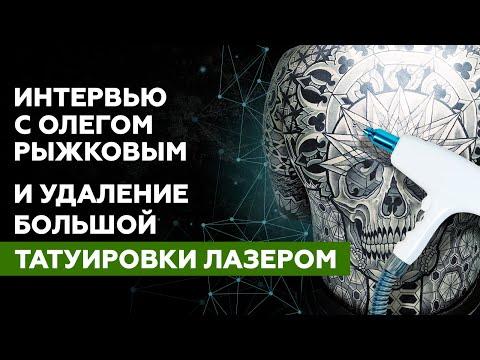 Интервью с Олегом Рыжковым и удаление большой татуировки лазером