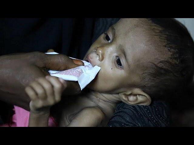 One million Yemeni children at risk of cholera -charity