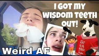 I got my Wisdom Teeth out! Funny Reaction 2017