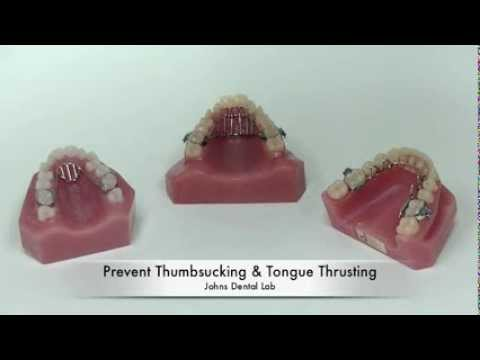 Treating tongue tie in adults