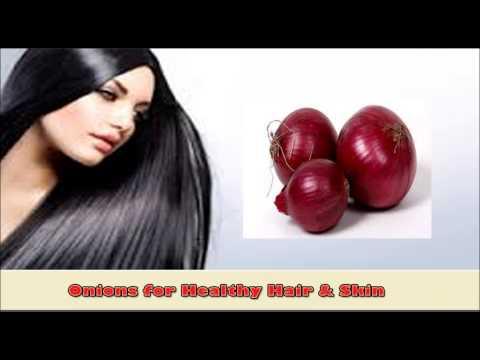 Health benefits of onion | प्याज के फ़ायदे | Onion for Hair loss, digestion, pimples, diabetes