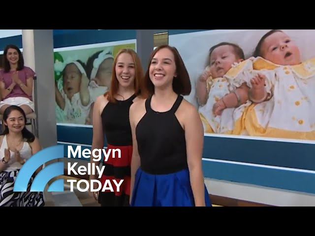 Conjoined Twin Sisters Tell Their Story: 'Being By Her … It's So Calming'   Megyn Kelly TODAY