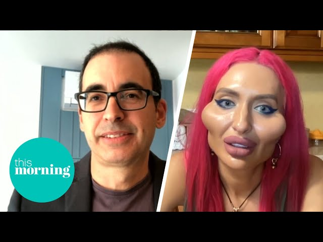 Cosmetic Surgeon Says 'Alien-Like' Facial Surgery Has Gone Too Far   This Morning