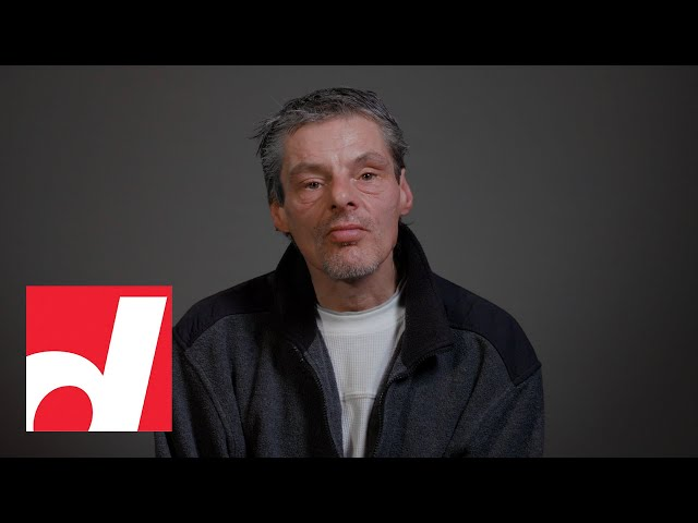 Homeless and alone in Toronto, he's determined to get his old life back | Before & After