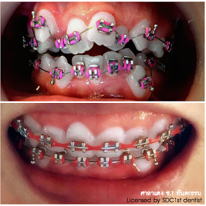 Braces with sexy girls Youngs