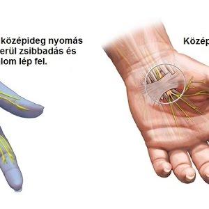 Ortopédiai betegségek