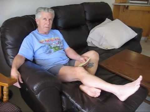 Calcaneus / Heel Fracture = Part 1 (March, 2012)