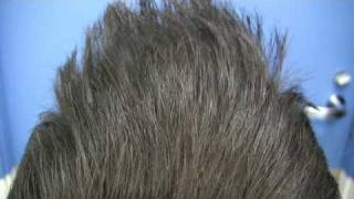 Best Hair Transplant - Dr Hasson - 7818 Grafts