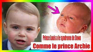 Complètement s'effondrer! Prince Louis a le syndrome de Down, comme le prince Archie