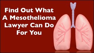What Will Mesothelioma Lawyers Do If I Have Mesothelioma