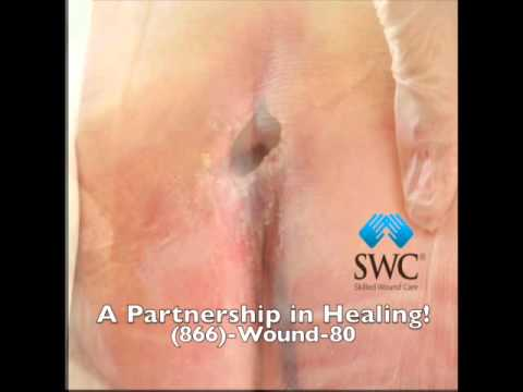 Real Wound Healing Video