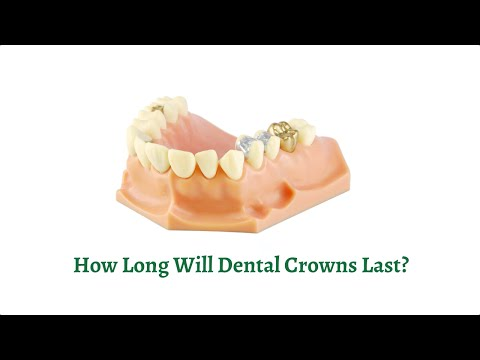 How Long Will Dental Crowns Last?