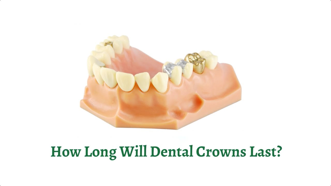 How Long Will Dental Crowns Last? - YouTube
