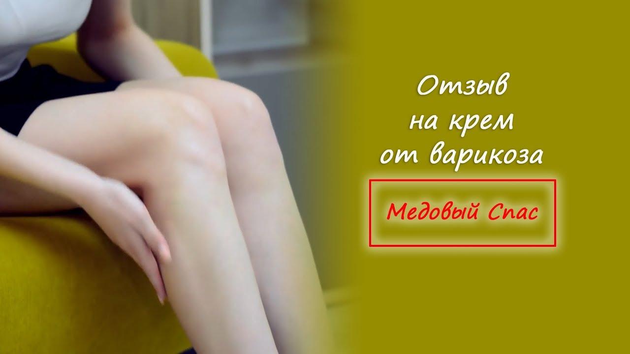 Отзыв на крем от варикоза Медовый Спас #варикоз #лечениеварикоза #63