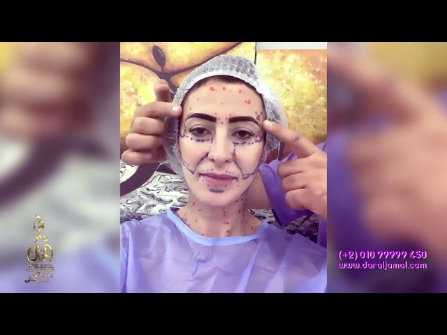 تجمل الوجه من داخل دار الجمال مع دكتور ابراهيم كامل