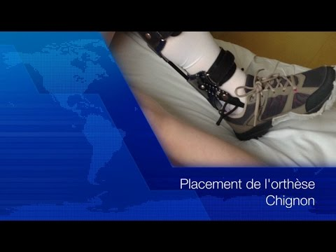 """placement-de-l'orthèse-""""chignon""""-en-8-étapes"""