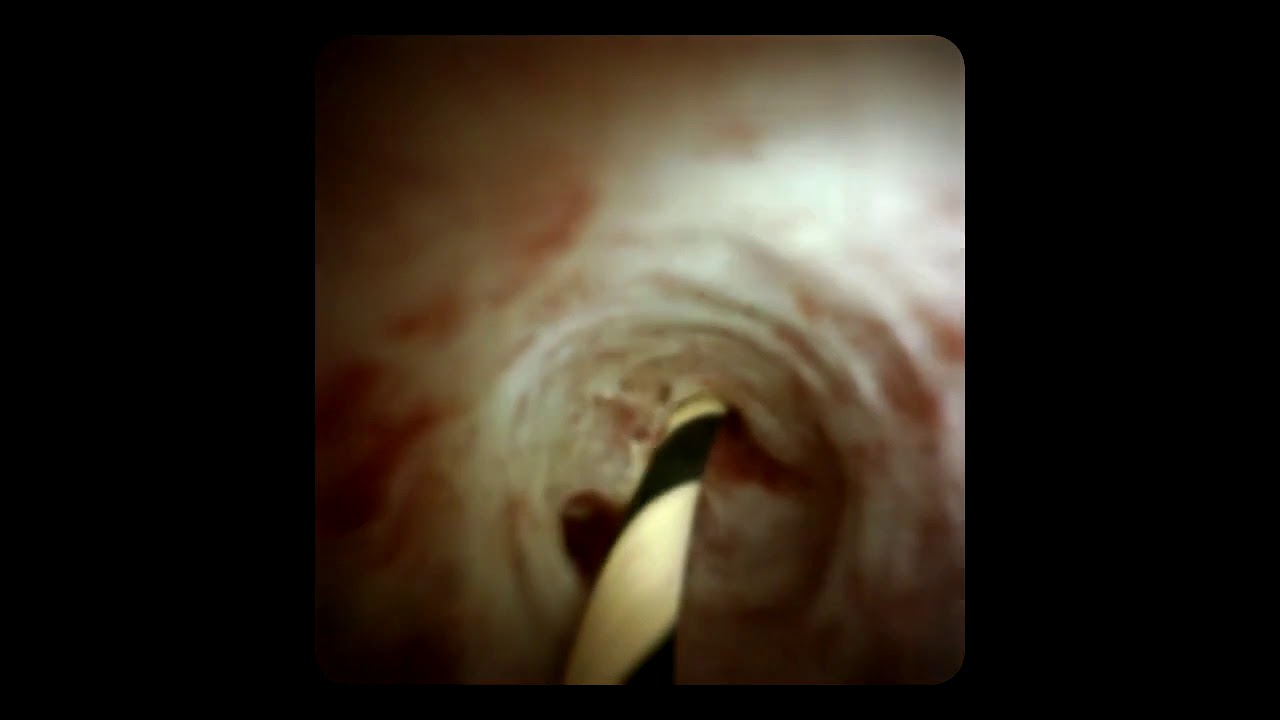 Cholangioscopy