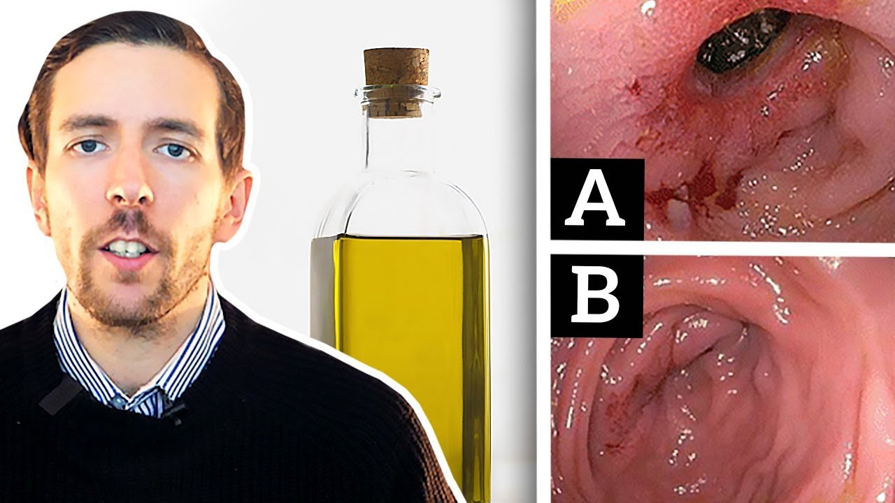 This Is What Vegetable Oils Do To The Gut