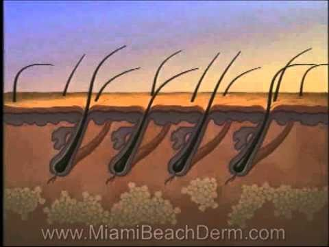Laser Hair Removal Light Sheer Diode Lazer Miami Beach Skin Center South Beach.