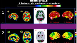 hqdefault - Spect Scan And Depression