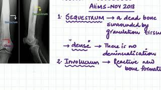 Video 42 Hemiplegia Alternans.