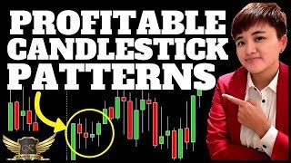 How to Read Candlestick Patterns for Forex Beginners