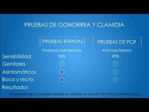 Clamidia uretritis hombre síntomas sí