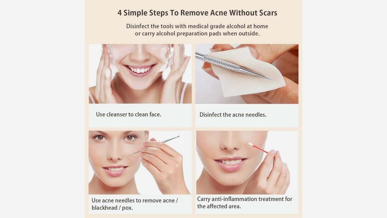 hight resolution of  extractor tool acne
