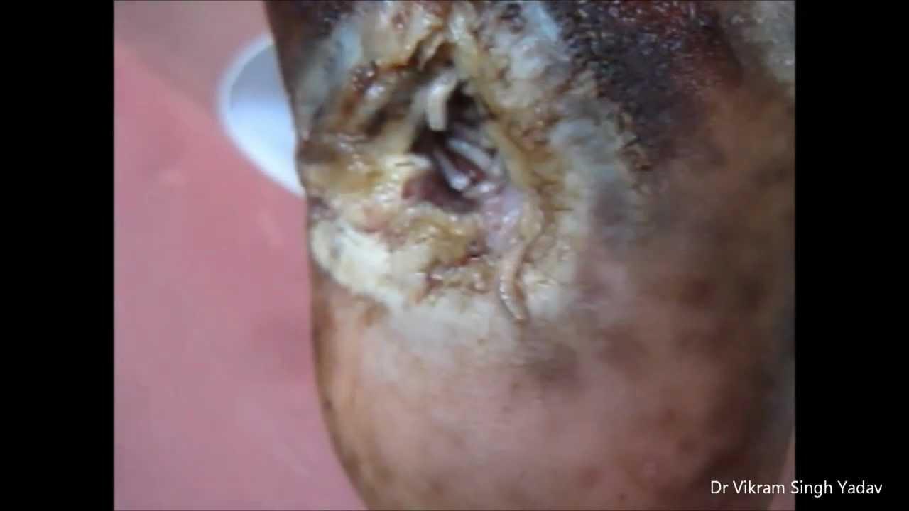 Maggots Inside Wound #TheyNastyYall