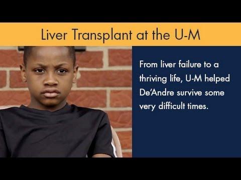 Liver Transplant (Pediatric) | CS Mott Children's Hospital