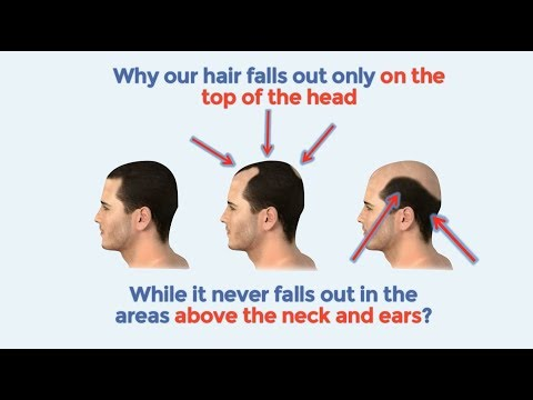 Best Hair loss treatment | How to stop hair loss naturally and baldness cure 2016