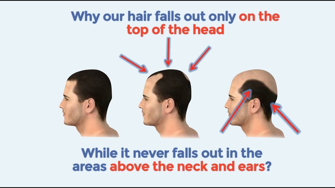 The Best Way To Stop Hair Loss