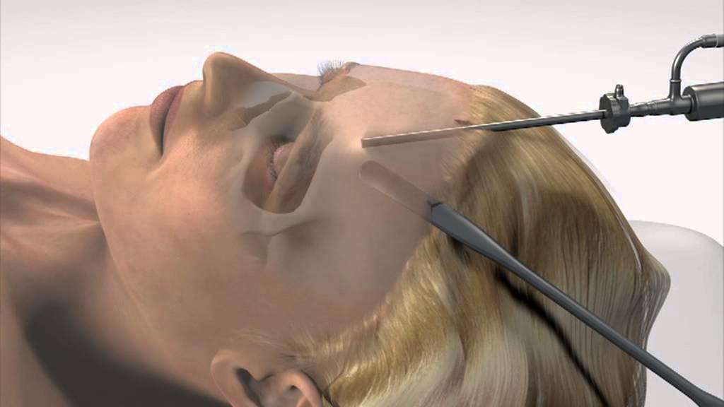 3-D animatie: Voorhoofdslift