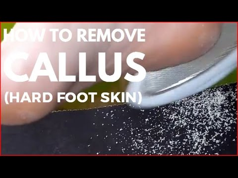 How to remove callus (Hard foot skin)