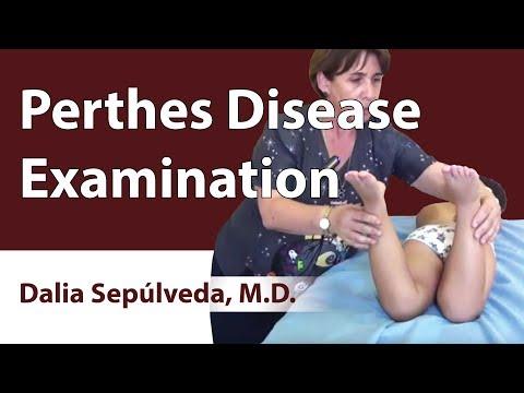 Perthes Disease Examination ▶1:39