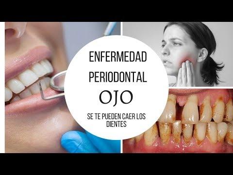 Los riesgos de la Enfermedad Periodontal, OJO Se te pueden caer los dientes