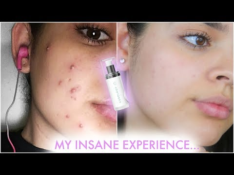 The Truth About Curology | Skincare Update | JackieFlores