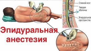 Эпидуральная анестезия да или нет?!?! || Интересные факты.